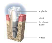 implant-with-crown